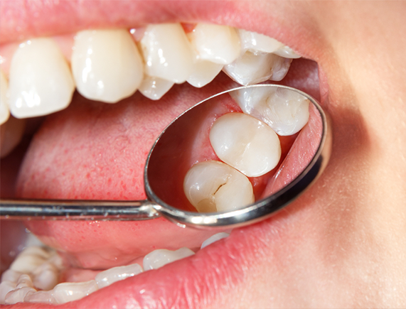 Dental Sealants - 2